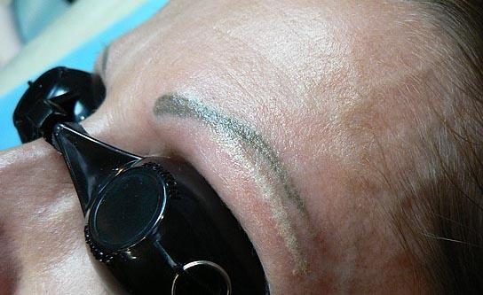 удаление волос на бровях навсегда