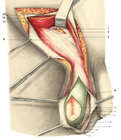 Хирургическое удаление паховой грыжи